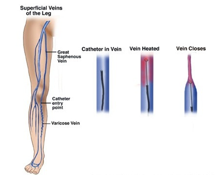 Superficial Veins of the Leg
